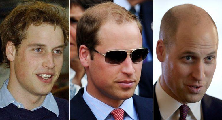 El nuevo look del príncipe William