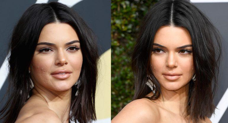 Kendall Jenner defiende sus imperfecciones