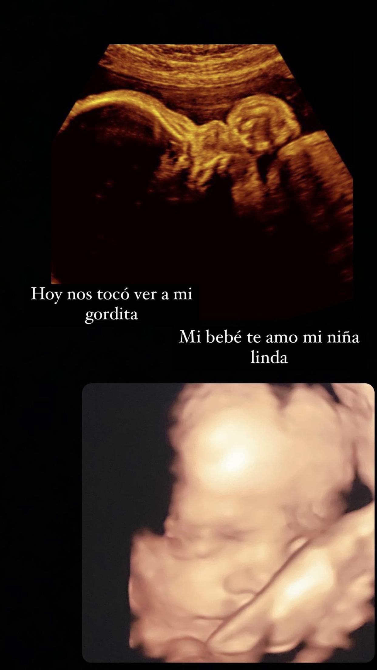 ximena navarrete embarazo